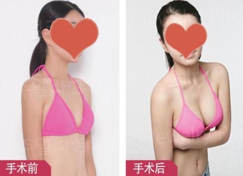 珠儿丽隆胸术后效果对比