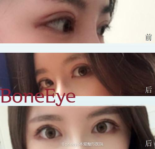 韩国本爱整形双眼皮修复案例