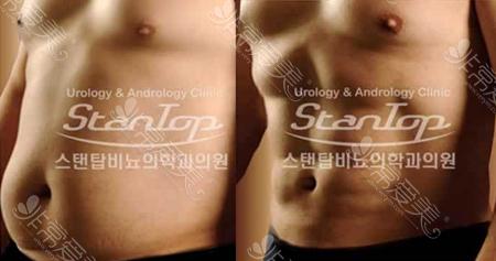 韩国世檀塔男科医院男性腰腹吸脂前后对比