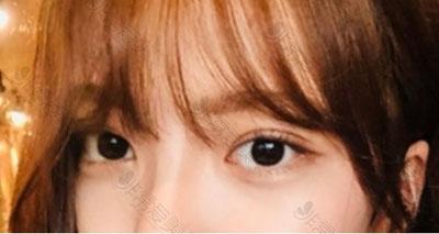 韩国蜡笔郑美善医生案例图