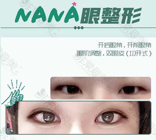 韩国娜娜整形外科眼整形照片