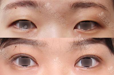 希克丽双眼皮案例改善内双眼皮效果图