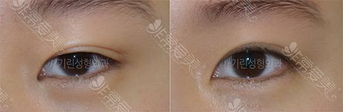 绮林整形双眼皮手术案例图