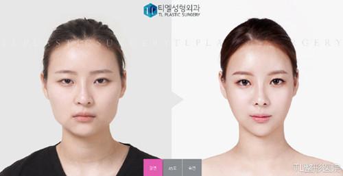 韩国TL整形医院轮廓整形真人案例图