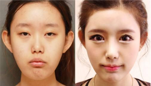 双眼皮整形对比案例图