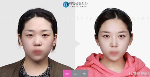 韩国TL整形医院眼鼻整形真人案例图