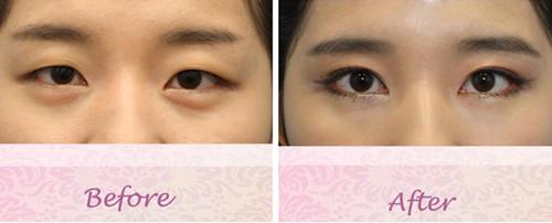 韩国珍爱医院双眼皮案例