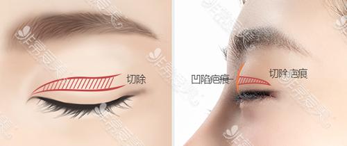 爱丽克医院香肠眼修复方法示意图