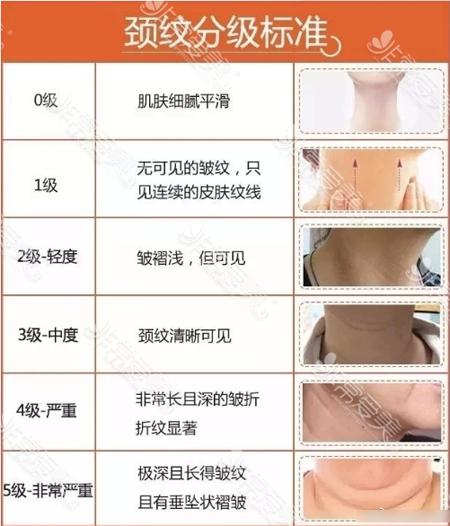 颈纹的几种分类