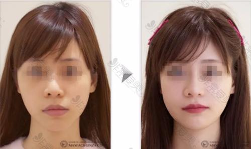 渡边裕之轮廓手术案例