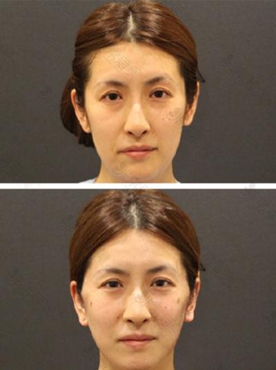 日本Sapho整形医院抗衰老案例