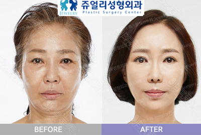 韩国珠儿丽整形外科面部提升案例