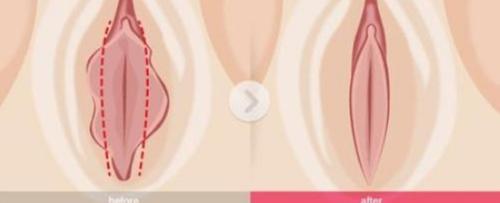 阴唇整形效果对比图