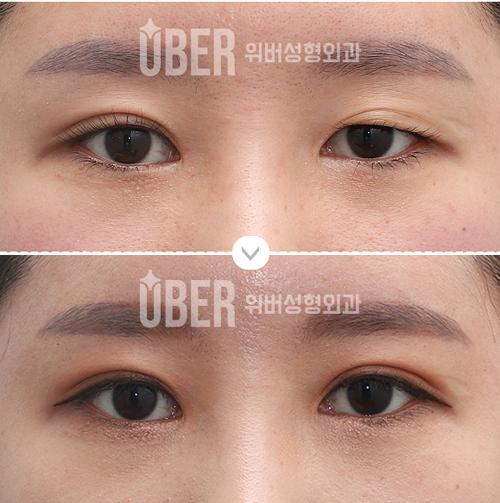 韩国玉芭医院眼部整形案例