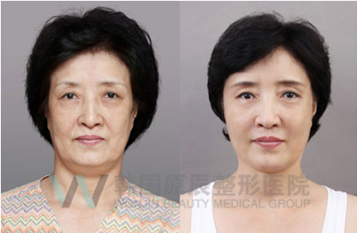 韩国原辰医院面部提升案例