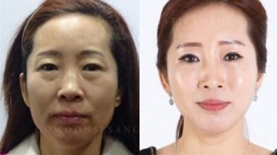 韩国高恩世上面部抗衰老提升案例