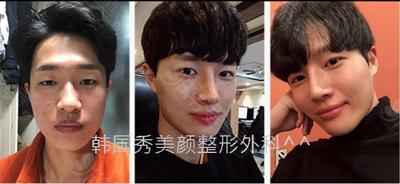 韩国秀美颜整容外科真人鼻整形效果