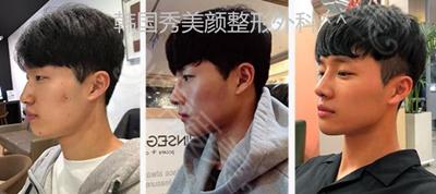 韩国秀美颜整容外科轮廓整形案例