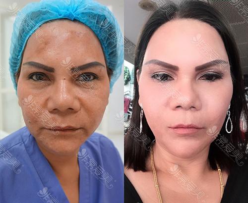 泰国Lelux整形外科面部脂肪填充案例对比