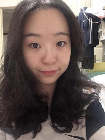 韩国丽颜丽整形外科眼鼻整形术前