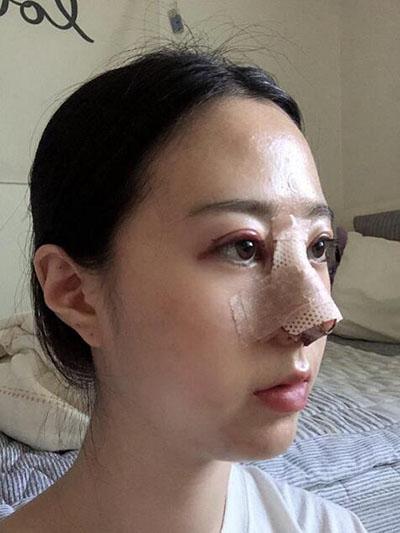 韩国李政祐眼鼻整形案例