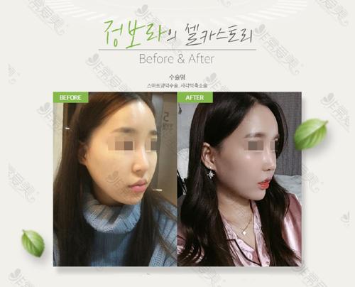 韩国普罗菲耳整形医院面部轮廓手术对比照