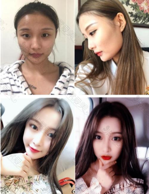 韩国ID整形医院轮廓手术前后对比