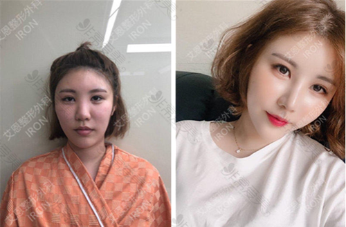 韩国艾恩整形医院隆鼻+鼻翼缩小手术案例