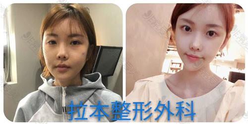 韩国拉本整形医院拉皮手术前后对比