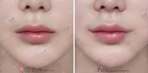 韩国初见整形外科唇部整形对比图