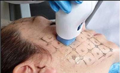 热吉马提升手术方法示意图