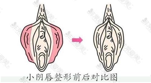 小阴唇整形前后对比图
