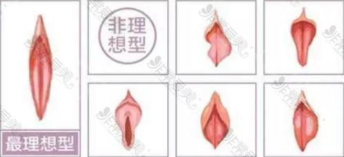 理想型阴唇和非理想型阴唇对比图