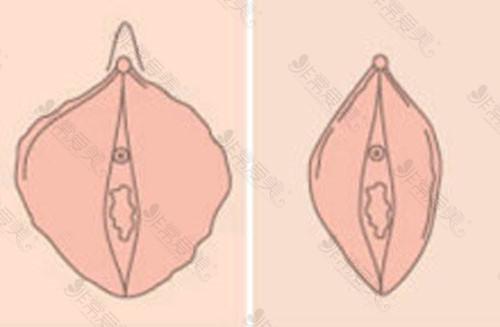 小阴唇整形动画对比图