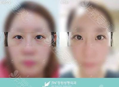 韩国JW整形医院去眼袋效果对比