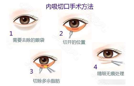韩国去眼袋手术原理