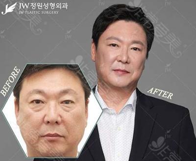 韩国JW整形男士去眼袋效果