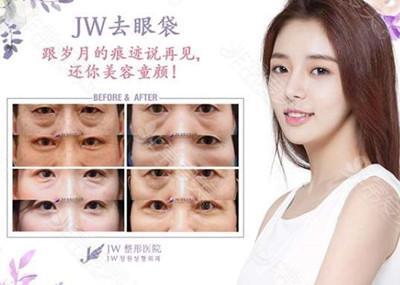 韩国JW整形去眼袋真人效果