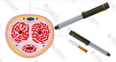 韩国世檀塔男科注射勃起针剂图