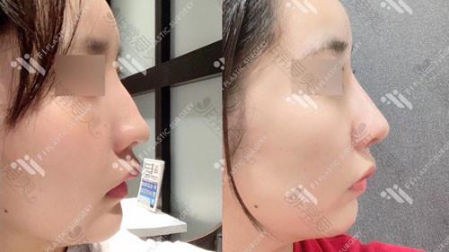 韩国富爱整形外科怎驼峰鼻矫正案例