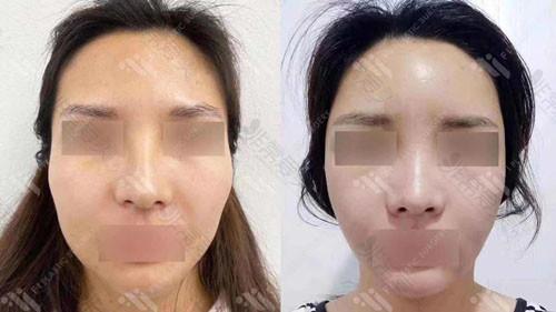 韩国富爱整形外科面部脂肪填充案例