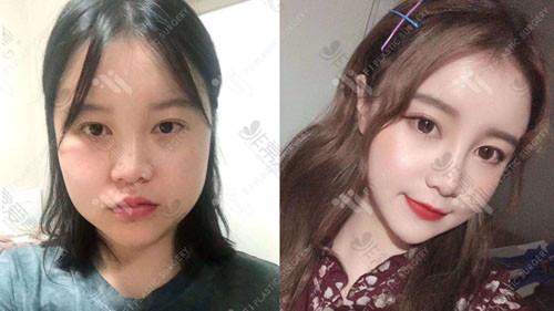 韩国富爱整形外科怎面部吸脂案例