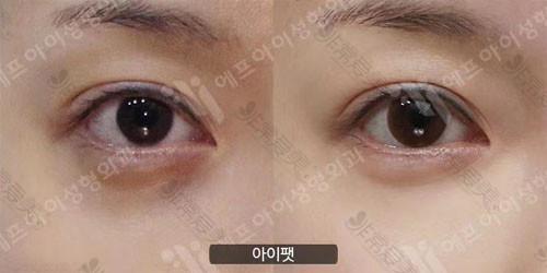 韩国富爱整形外科眼底脂肪重置对比照