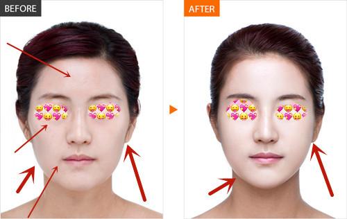 全脸脂肪填充真人前后对比图