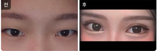 韩国Toptier整形医院眼部手术对比案例