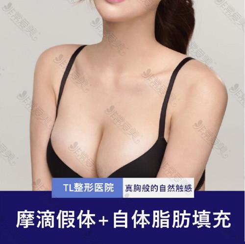 韩国TL医院复合隆胸案例