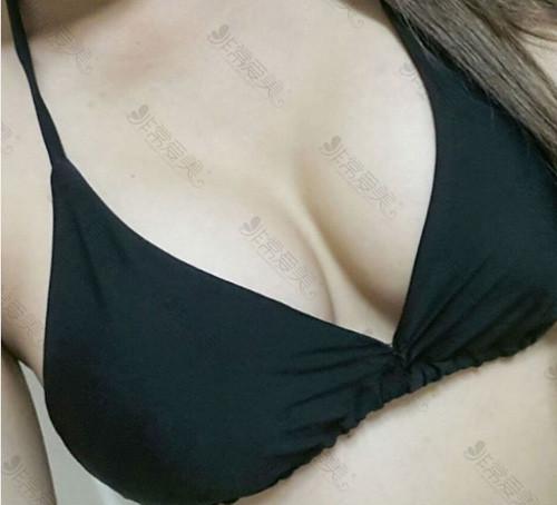 韩国麦恩整形外科自体脂肪隆胸效果