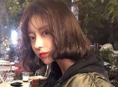 韩国普瑞美整形外科隆鼻真人案例