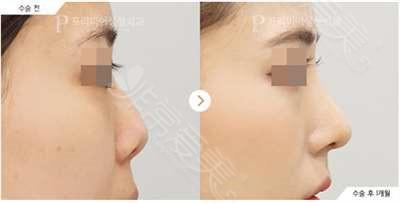 韩国普瑞美整形外科隆鼻效果对比