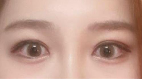 双眼皮修复术后效果图